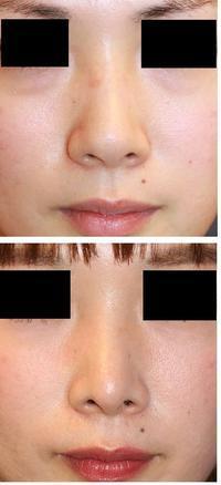 鼻尖縮小術(クローズ法)、鼻尖部軟骨移植 術後5年 - 美容外科医のモノローグ