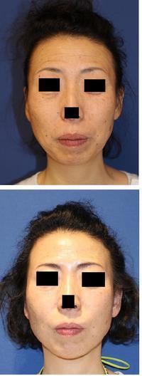 顎先形成(脂肪移植)、IPL光美顔、顎下ベイザー、お顔アキュスカルプレーザー、ミントリフトミニリフト - 美容外科医のモノローグ