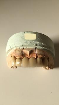 審美歯科・セラミックブリッジ歯 - メグデンブログ