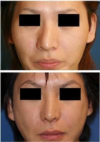 頬骨再構築術後約7年、鼻根縮小術、斜鼻修正術 術後約7年、鼻尖縮小術後約7年、小鼻縮小術後6年 - 美容外科医のモノローグ
