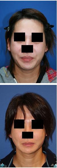 顎先 T字骨切術 術後約半年 - 美容外科医のモノローグ