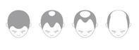 脱毛の種類と原因 - 赤坂・ニューオータニのヘアサロン大野ザメイン店ブログ