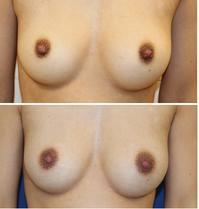 乳頭縮小術、モントゴメリー除去術 術後2か月 - 美容外科医のモノローグ