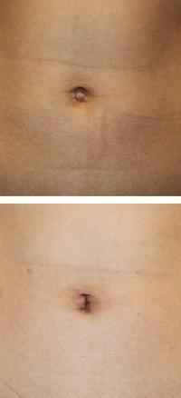 臍ヘルニア根治術 + 縦長おへそ形成術   術後1か月 - 美容外科医のモノローグ