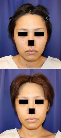 他院頬骨 骨切術後 再手術 (V字 頬骨体中抜き術 ) - 美容外科医のモノローグ