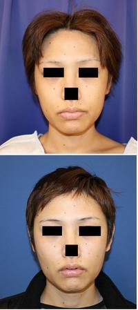 バッカルファット摘出術、 頬 アキュスカルプレーザー  術後約6週間 - 美容外科医のモノローグ