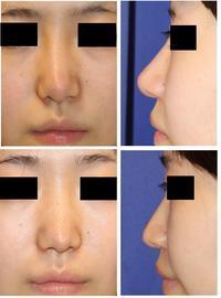 他院術後鼻修正術:   鼻背皮切術、 鼻プロテーゼ抜去、鼻先軟骨移植除去+婦人科軟部組織移植 - 美容外科医のモノローグ