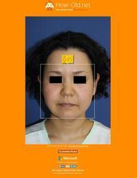 ロアーリフト 術後約4年 、 n-COG糸留置術 術後半年 - 美容外科医のモノローグ
