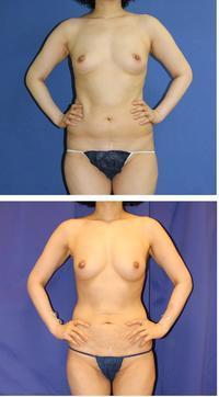 脂肪移植豊胸 1年に2回うけた後 術後3年再診 - 美容外科医のモノローグ