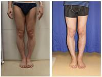 左下腿  ISKD脚延長術 術後約6週間 - 美容外科医のモノローグ