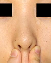 鼻柱下降術、小鼻縮小術、鼻孔縁延長術 - 美容外科医のモノローグ