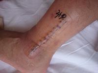 2月17日(金)手術後266日目 抜釘手術後1日目 - お休み日記(左足首脱臼骨折)