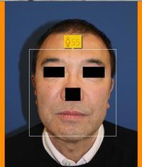 HIFU直後の若返り効果の検討 - 美容外科医のモノローグ