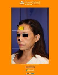 他院フェイスリフト術後キズ痕修正, ロアーSMASリフト - 美容外科医のモノローグ