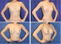 コヒーシブシリコンバッグ豊胸術(250cc) 術後3か月 - 美容外科医のモノローグ