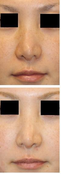 他院鼻根部骨切幅寄せ術後修正術(鼻根部骨切り拡大術)  他院鼻尖部術後修正術(婦人科軟部組織移植) - 美容外科医のモノローグ