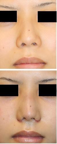 小鼻縮小、 レーザー鼻尖縮小術 術後1週間 - 美容外科医のモノローグ