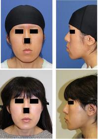 下顎骨セットバック(歯槽部骨切り後方移動術)、 顎先中抜き骨切術 術後約2年8か月 - 美容外科医のモノローグ