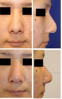 前医鼻プロテーゼ留置術、鼻中隔延長術 術後 プロテーゼ抜去、鼻中隔延長移植軟骨除去 - 美容外科医のモノローグ