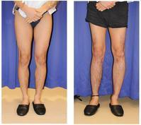 脚延長術 (ディバスティアーニ変法) 初回手術から一年後 - 美容外科医のモノローグ