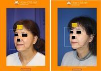 頬アキュリフト、ミントリフトミニSリフト、目の下のクマ炭酸ガス注射 - 美容外科医のモノローグ