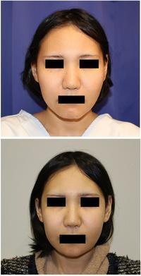 頬骨V字骨切術、顎先中抜き術、鼻根縮小術(鼻骨骨切幅寄せ) - 美容外科医のモノローグ