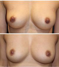 乳頭縮小術 術後1年半 - 美容外科医のモノローグ
