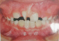3/5 矯正歯科 - 「あなたに似た花。」