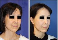 鼻翼基部アパタイト(法令線部アパタイト形成術) - 美容外科医のモノローグ