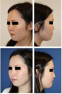 他院 鼻中隔延長術、小鼻縮小術、鼻プロテーゼ留置、人中短縮術  術後修正術(複合手術)) - 美容外科医のモノローグ