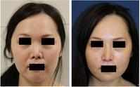 他院鼻中隔延長術 修正術 (鼻プロテーゼ入れ替え、小鼻縮小、鼻中隔延長、小鼻肉厚減幅術、鼻孔縁拳上 - 美容外科医のモノローグ