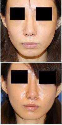 人中短縮術、レーザー鼻尖 術後約半年 - 美容外科医のモノローグ
