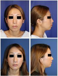 上下顎セットバック 術後約半年 - 美容外科医のモノローグ