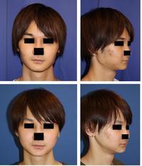 エラ骨骨切術(plan A) 術後約半年 - 美容外科医のモノローグ
