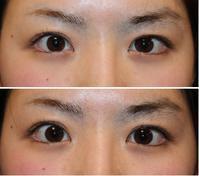 左  上瞼たるみ取 - 美容外科医のモノローグ