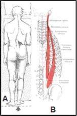 トリガーポイント症例集① (腰椎側湾症) - ホロス加藤 札幌 (カイロ&トリガーポイント)