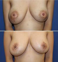 他院乳輪縮小術後 キズ痕に対する 修正術 術後約3年再診時 - 美容外科医のモノローグ