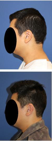 頭蓋形態修正術 (アパタイト形成術) - 美容外科医のモノローグ