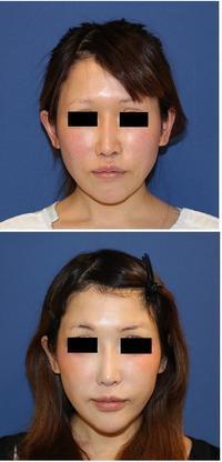 小鼻縮小術、口角つりあげ術,眉上切開(エンドタインによるブローリフト),目の下のたるみ取り - 美容外科医のモノローグ