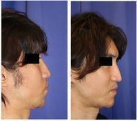 顎先プロテーゼ留置術  術後1か月 - 美容外科医のモノローグ