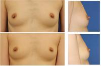 乳頭縮小術 術後約6か月 - 美容外科医のモノローグ
