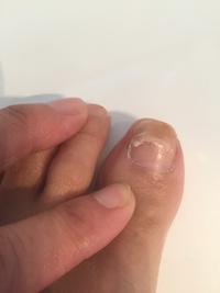 足の爪がまっ二つ😱 - デンな生活