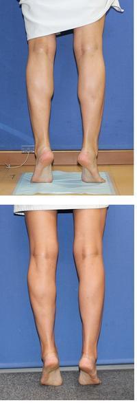 NICR (ふくらはぎスリム形成術) 術後約4か月 - 美容外科医のモノローグ