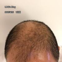 2ヶ月経過した頭部の状況写真をアップ【AGAセルフ治療61日目】 - ハゲにつけるクスリはある…?