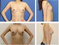 脂肪移植豊胸 術後約4年3か月  (腹部より採取し両乳房へ脂肪移植) - 美容外科医のモノローグ