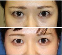 涙袋ヒアルロン酸形成 術後約3か月 - 美容外科医のモノローグ