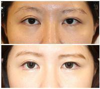 目尻切開術後約半年 - 美容外科医のモノローグ