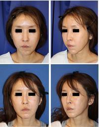 アキュリフト、ミニリフト、顎下ベイザー脂肪吸引、鼻アクアミド除去+鼻プロテーゼ留置等 - 美容外科医のモノローグ
