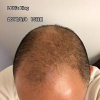 15日目の写真をアップ【AGAセルフ治療15日目】 - ハゲにつけるクスリはある…?