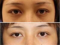 目の下のクマに対する炭酸ガス注射治療 - 美容外科医のモノローグ